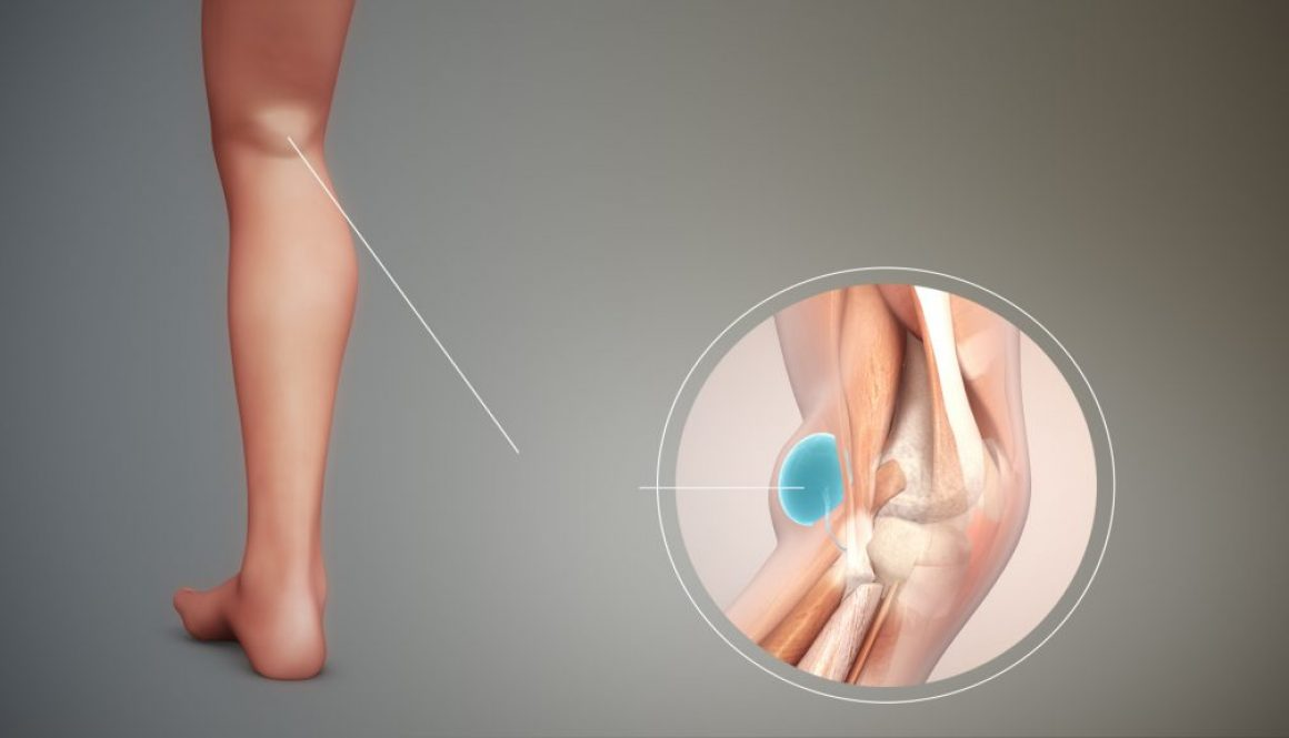 Bakers-Cyst-3D-medical-animation