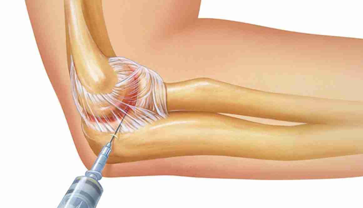 cs-Septic-Arthritis-JIA-RM-600x400